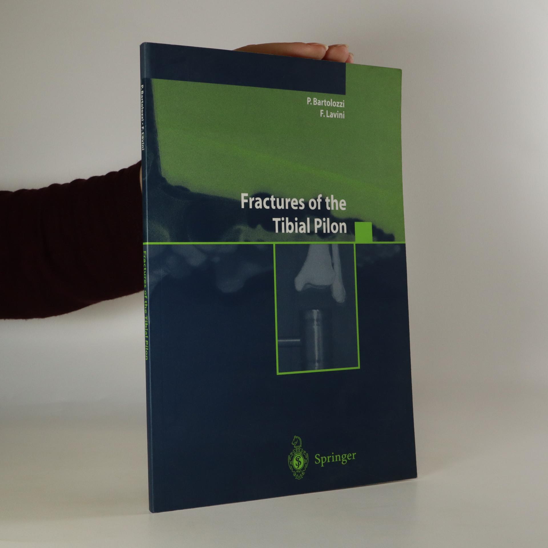 antikvární kniha Fractures of the Tibial Pilon, 2004