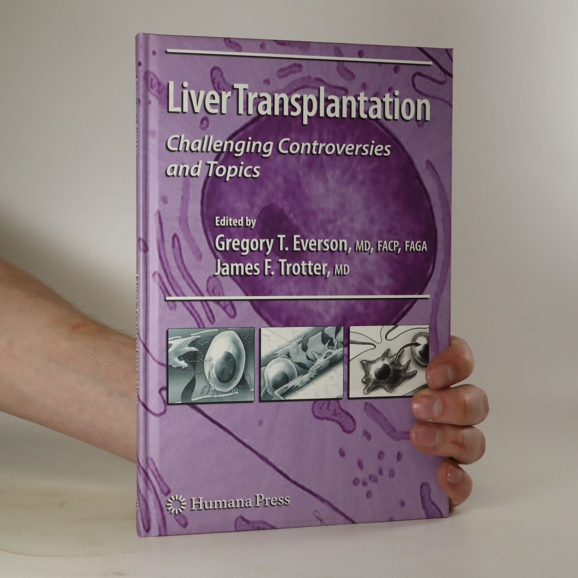 antikvární kniha Liver Transplantation, neuveden
