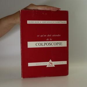 náhled knihy - Ce qu'on doit attendre de la colposcopie