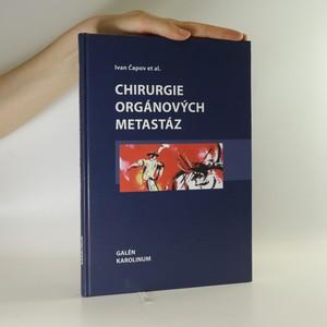 náhled knihy - Chirurgie orgánových metastáz