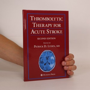 náhled knihy - Thrombolytic Therapy for Acute Stroke