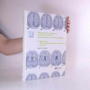náhled knihy - Magnetická rezonance nervové soustavy. Radiologické a klinické aspekty. II. Epilepsie. Neurodegenerativní onemocnění mozku