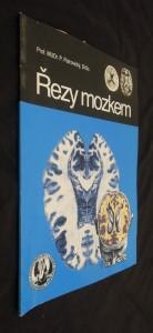 náhled knihy - Řezy mozkem : Neuroanatomie, CT, NMR