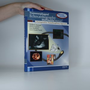 náhled knihy - Transesophageal Echocardiography Multimedia Manual. A Perioperative Transdisciplinary Approach