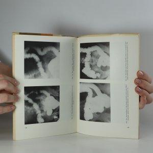 antikvární kniha Imunologické pojetí ulcerosní kolitidy (kniha je cítit kouřem), 1965