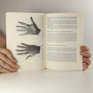 antikvární kniha Hnisavá onemocnění ruky, 1989