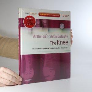 náhled knihy - Arthritis & arthroplasty. The knee